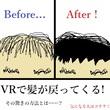 VRで髪が戻ってくる!