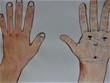 手の甲と手の平。